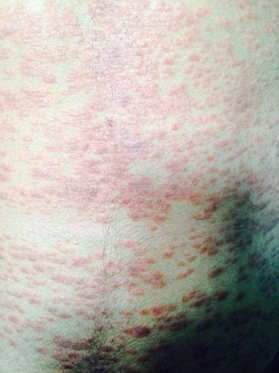 Psoriasis: Successful Treatment With Ayurveda + Foods To Avoid